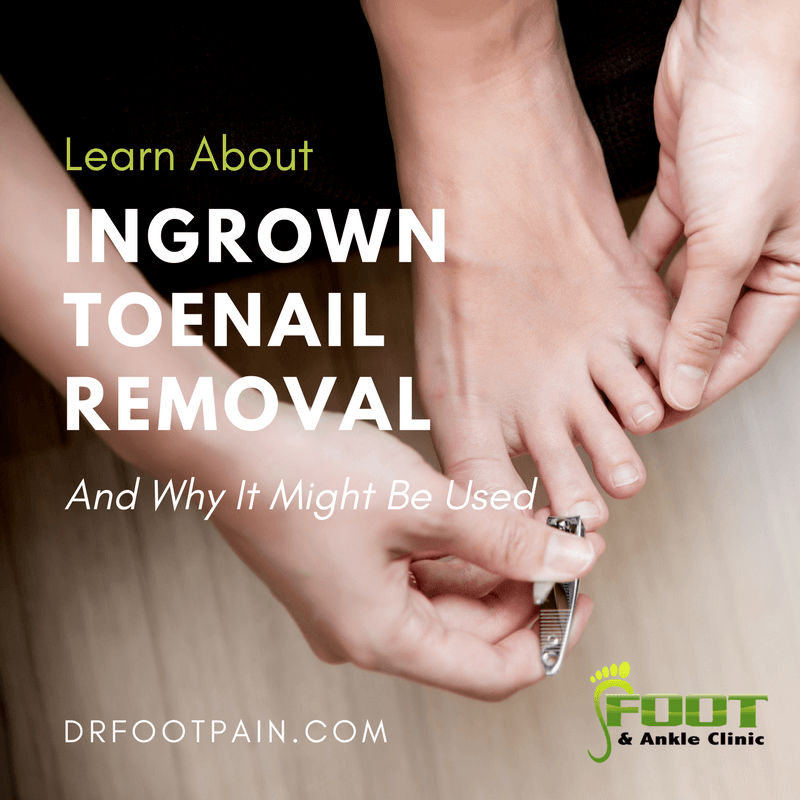 How Ingrown Toenail Removal Works - Foot and Ankle Clinic