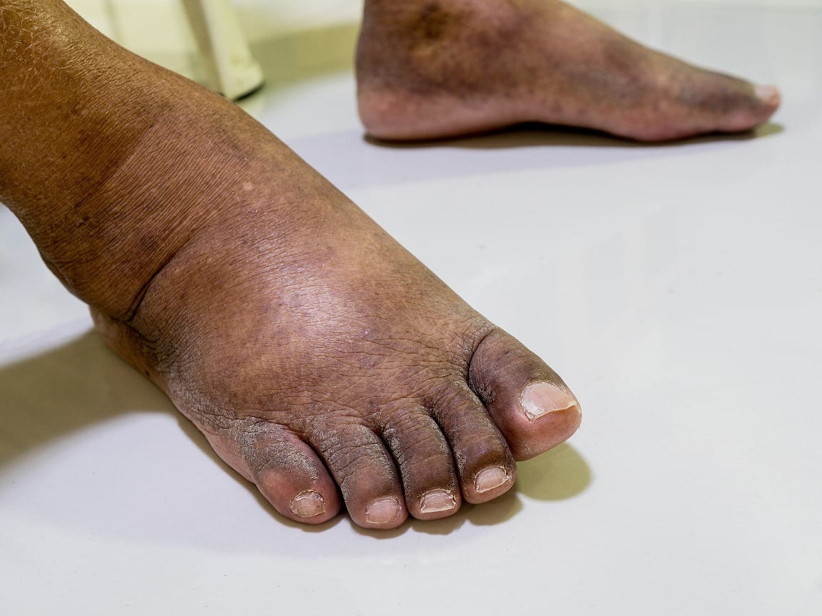 a diabetic's foot care needs are paramount.