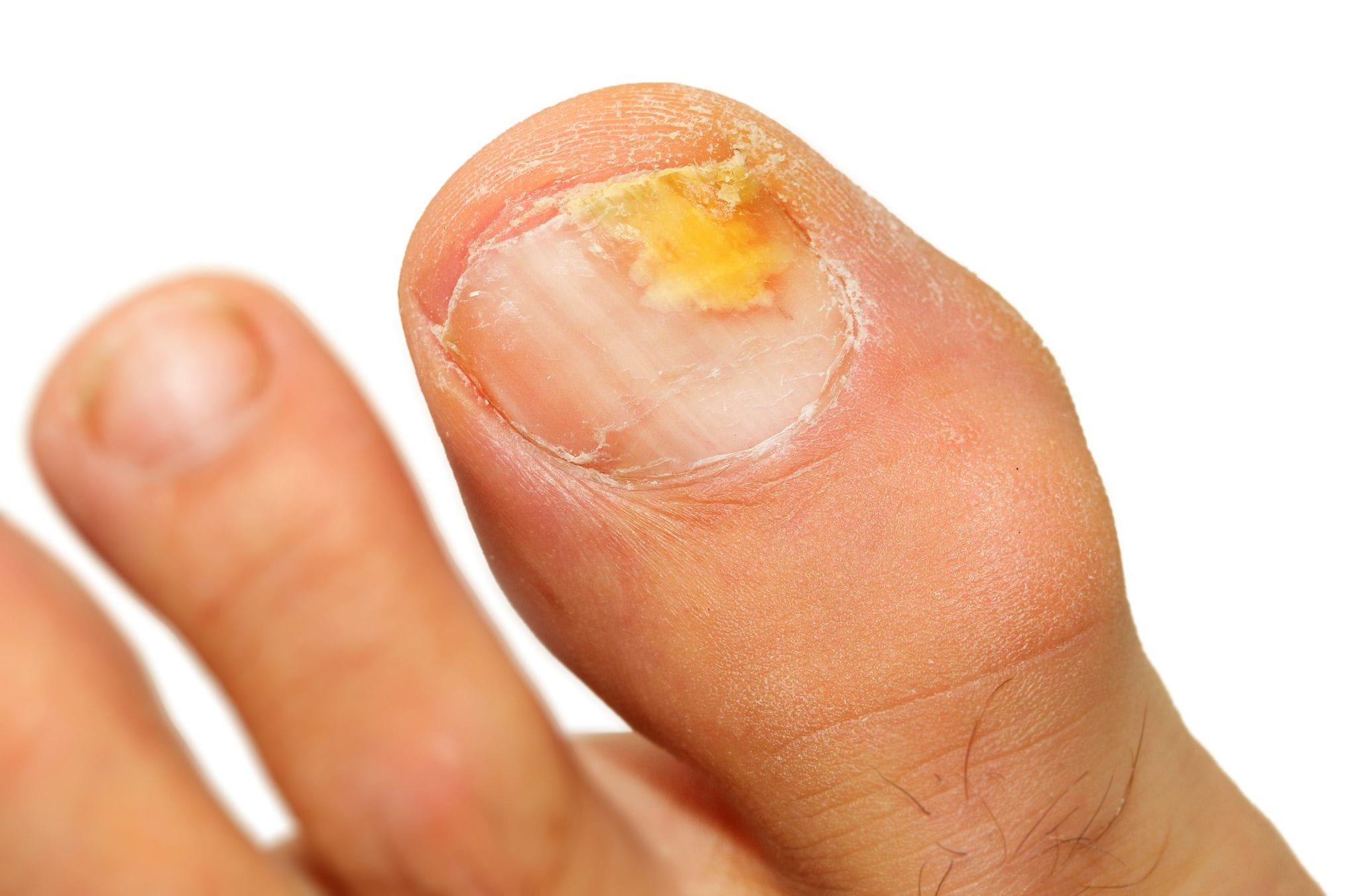 When is it time to visit a foot and ankle doctor for toenail fungus?