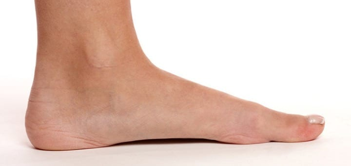 In Children Its Often Common To Notice That A Toddler Or A Baby Has Flat Feet When Theyre Walking However Its Hardly A Cause For Alarm